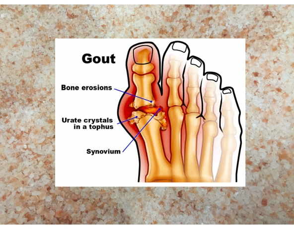 Himalayan Pink Salt for Arthritis and Gout
